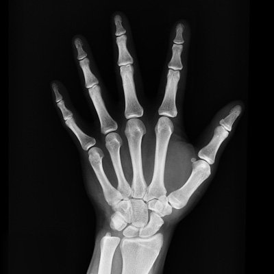 X-ray-hand-Mountain-View-Urgent-Care